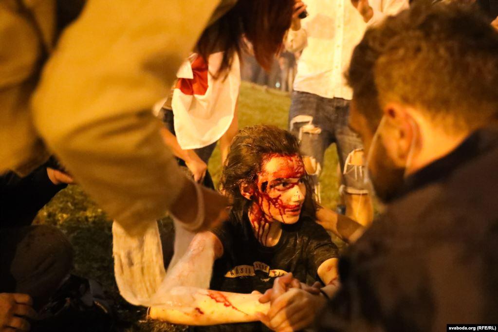 В Беларуси собирают помощь жертвам милицейского насилия